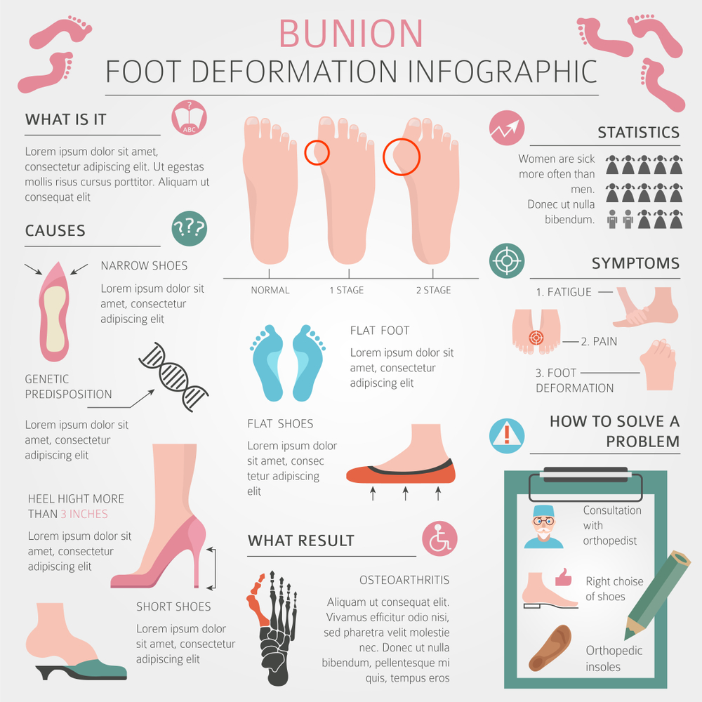 What Are Bunions