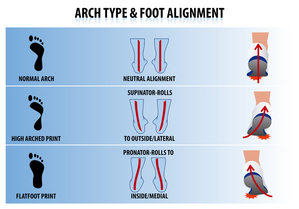 Shape of Foot